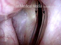 Vocal cord closure, large gap (3 of 4)