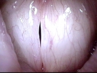 Vocal Cords without Lesion (6 of 6)