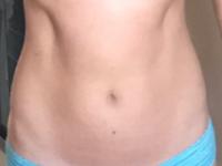 Non-bloated Abdomen (3 of 3)