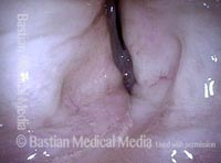 False vocal cords (6 of 8)