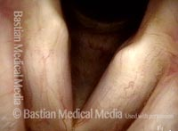 Microvascularity (4 of 4)