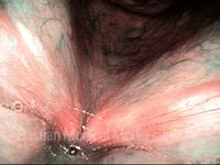 Capillary ectasia, after laser coagulation (6 of 7)