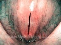 Capillary ectasia, after laser coagulation (7 of 7)