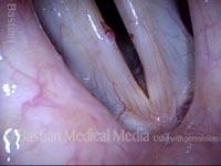 Capillary ectasia and hemorrhagic polyp (1 of 4)