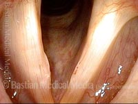 Capillary ectasia with vocal nodules (1 of 3)