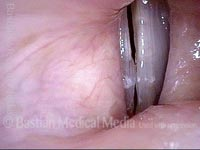 Capillary ectasia with vocal nodules (3 of 3)