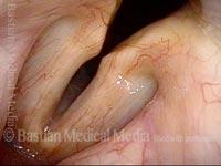 Cartilaginous glottis