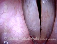 Expected early postsurgical swelling (4 of 4)
