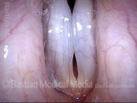 Flaccid vocal cords (3 of 3)