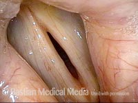 Flaccid vocal cords (1 of 4)
