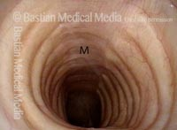 View of trachea during inspiration (1 of 6)