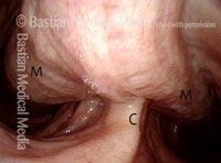 Trachea bulges inward (4 of 6)