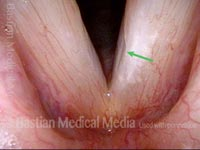 Glottic furrow / Leukoplakia / Acid reflux (2 of 4)