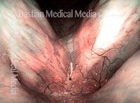 Re-mucosalization (4 of 4)
