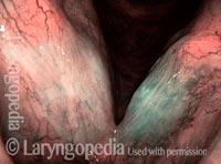 Leukoplakia (2 of 3)