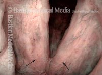 Stippled vascularity (2 of 3)