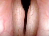 Close Up of Vocal Cords (4 of 5)