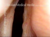 Bilateral laryngocele, after removal (8 of 8)