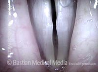 Obvious swellings, open phase (3 of 4)