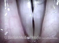 Obvious swellings, closed phase (4 of 4)