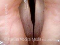 MTD gap (2 of 5)