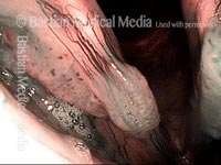 Papillomas: HPV Subtype 55 (2 of 4)