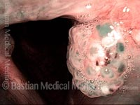 Papillomas: HPV Subtype 11 (2 of 4)
