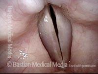 Re-posture vocal mechanism (5 of 5)