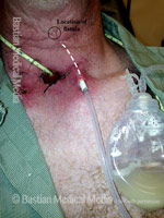 Pharyngocutaneous fistula (3 of 3)