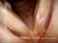 Capillary ectasia and white submucosal abnormality (1 of 3)