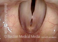 Muscular tension dysphonia (2 of 8)