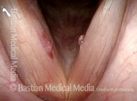 Bilateral chronic injuries (1 of 8)