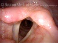 Redundant supraglottic mucosa (1 of 8)