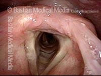 Redundant supraglottic mucosa: 7 weeks after surgery (7 of 8)