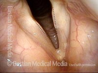 Convexed vocal cords (1 of 4)