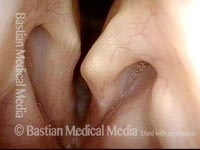 Vocal cord scissoring, made more obvious by atrophy (2 of 4)