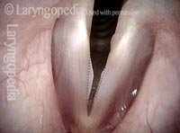 Swellings (1 of 5)