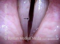 Red herring mucus retention cyst (4 of 4)