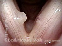 Vocal cord injuries (1 of 4)