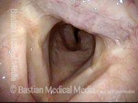 Upper tracheal stenosis, before repair (1 of 6)