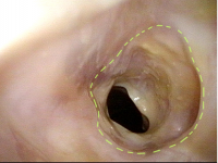Expected Size of Tracheal Opening (2 of 2)