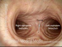 In the lower trachea: quiet breathing (5 of 8)
