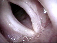 Vocal Cords (3 of 5)