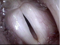 Vocal Cords (2 of 5)