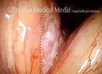 Tumor (2 of 4)