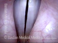 Vocal polyp, surgically removed (5 of 6)