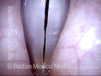 Vocal polyp, surgically removed (6 of 6)