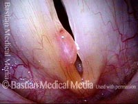 Vocal polyp, subsequent new injury (4 of 4)