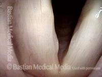 Large vocal nodules (1 of 8)