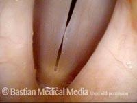 Vocal nodules (2 of 2)